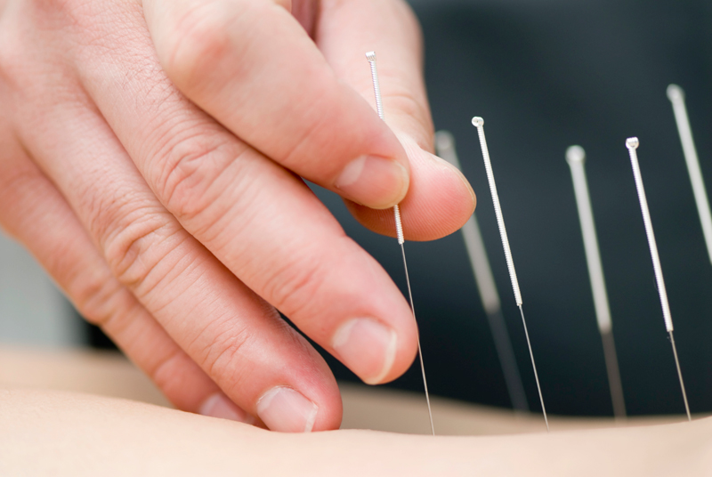 Acupuncture   Best Chiropractic in Wilmington - Leland, NC   ChiroCynergy